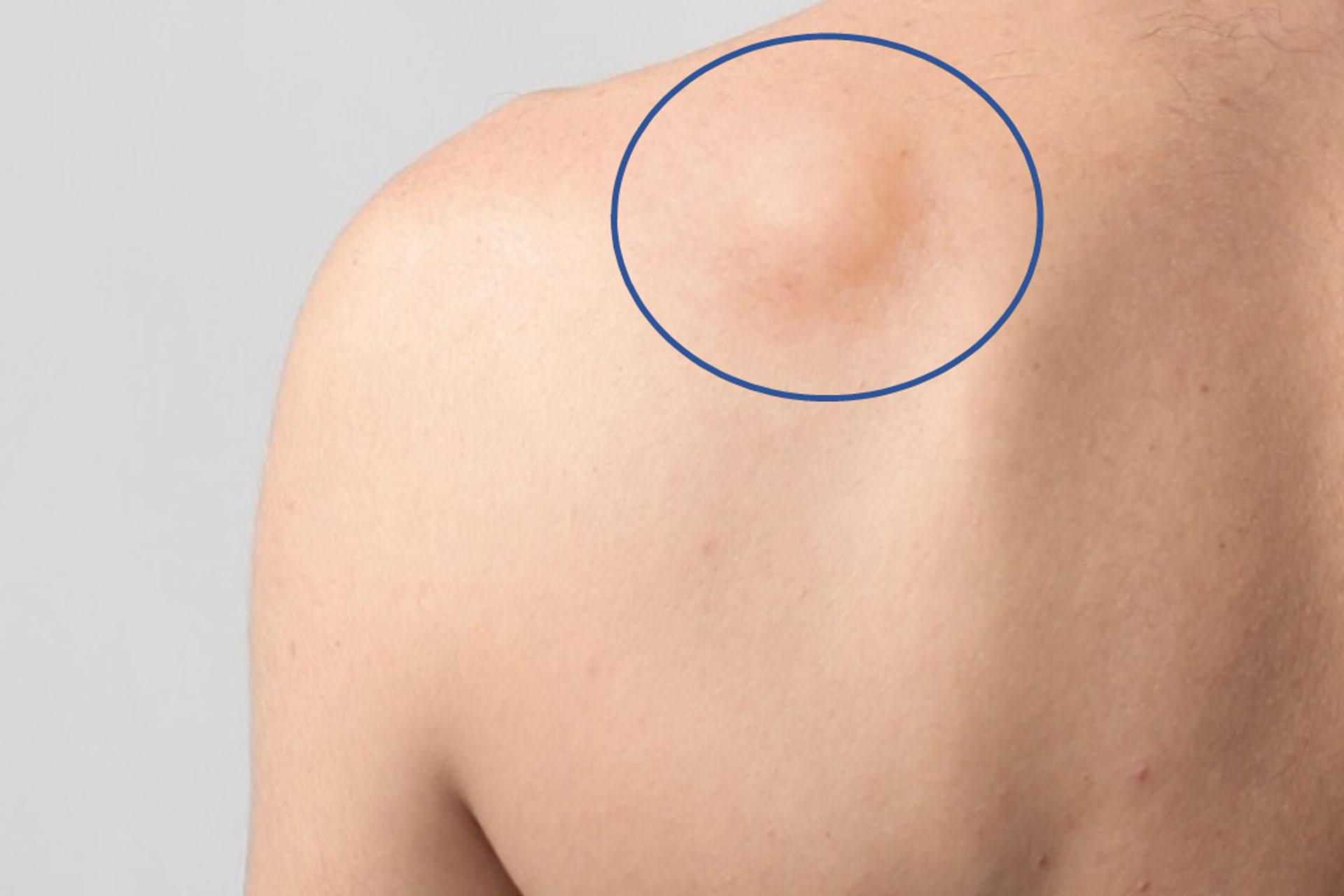 tumor de tejidos blandos